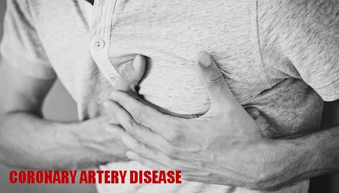 कोरोनरी आर्टरी डिजीज हृदय रोग, लक्षण, इलाज Coronary Artery Disease in Hindi, Cause, Symptoms, and Treatment
